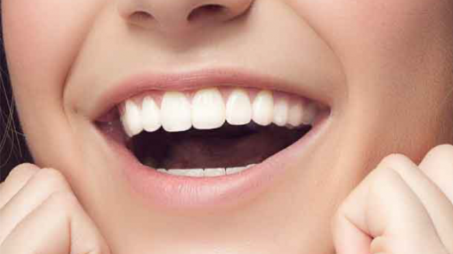 Cosmetic Dentistry Malta   Regional Dental Clinic