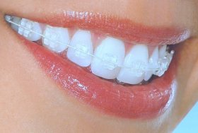 Orthodontics and Braces  malta, dentist malta, dentistry malta, dental clinic malta, regional dental clinic malta